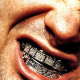 Dental Grills: 5 Celebrities with Teeth That Go Bling