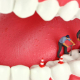 8 Myths and Facts about Root Canals