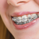 Old, Reliable Metal Braces: Are They Still Necessary?