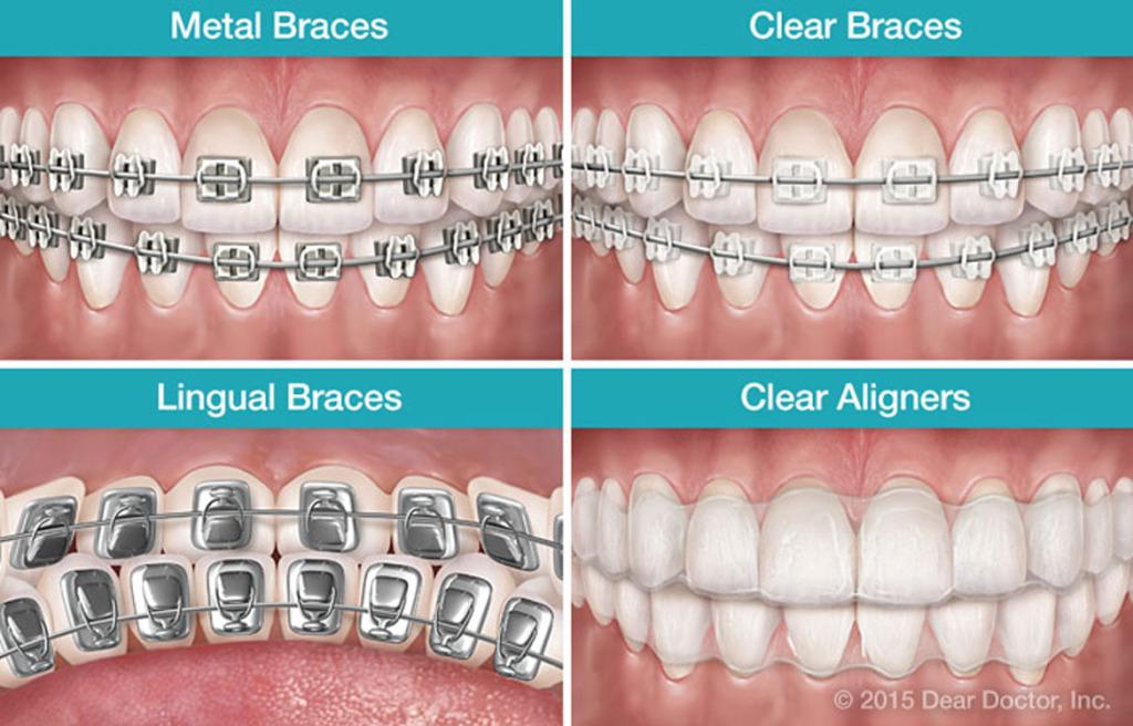Not Your Parents Braces Dentalplans Blog