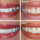 Can Porcelain Veneers Fix Crooked Teeth?