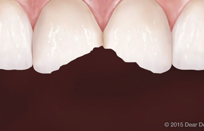 How Broken Teeth Can Be Fixed