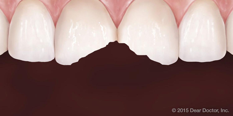 Bel-Red Pediatric Dentistry - Photos Reviews - Pediatric