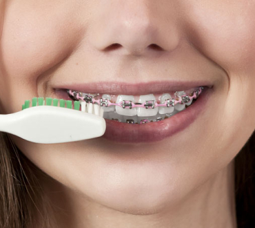 5 Tips for Brushing with Braces
