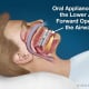 Can A Dental Appliance Prevent Snoring?