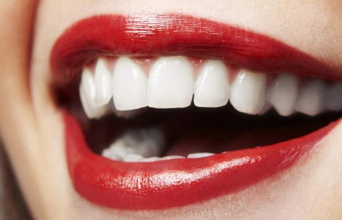 How Porcelain Veneers Can Make Teeth Look Younger