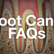Frequently Asked Questions: Root Canals