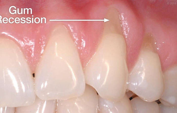 Reshaping Your Gums for a Better-Looking Smile