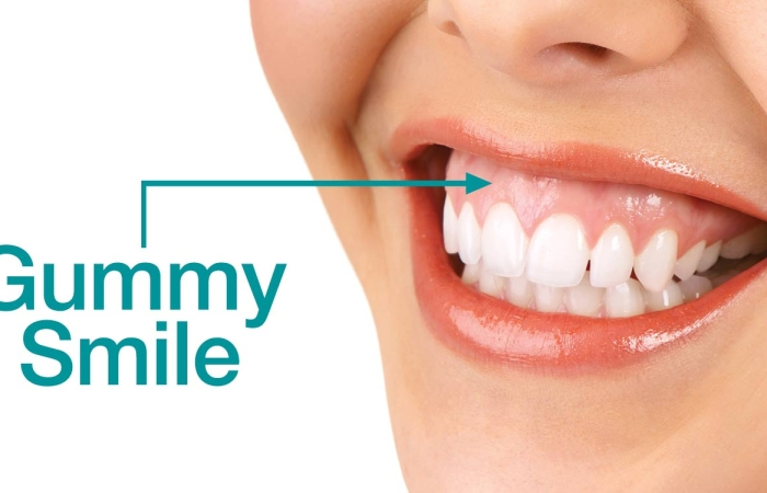 How Periodontal Plastic Surgery Can Improve a Gummy Smile