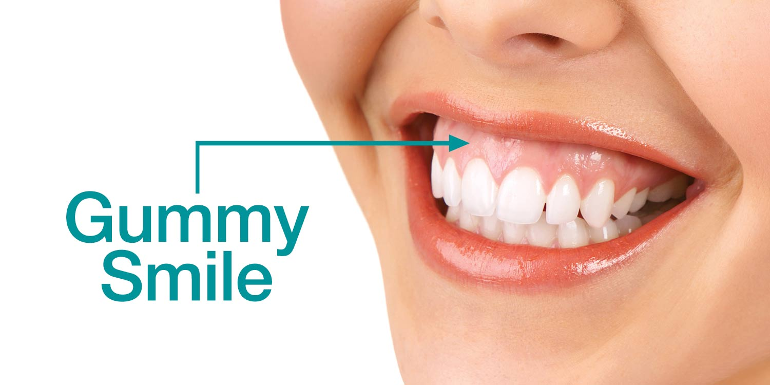 How Periodontal Plastic Surgery Can Improve a Gummy Smile ...