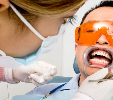 Benefits of Professionally Supervised Teeth Whitening