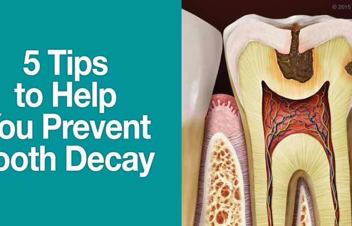 5 Tips to Help You Prevent Tooth Decay