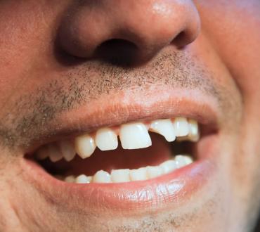 The Global Costs of Dental Disease