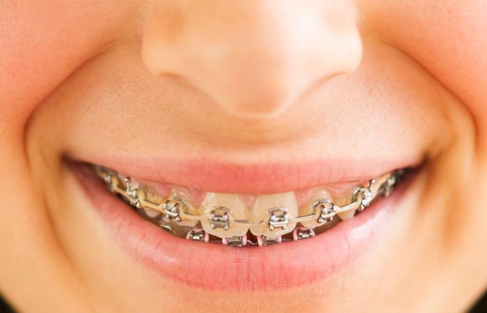 Dental Insurance For Braces