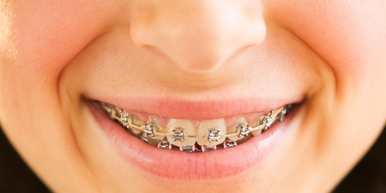 https://blog.dentalplans.com/wp-content/uploads/2016/01/bharaces.png