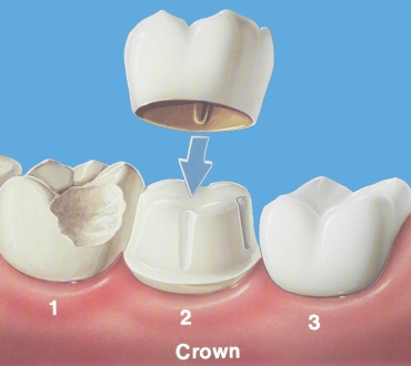 Why Your Dental Crown Came Off