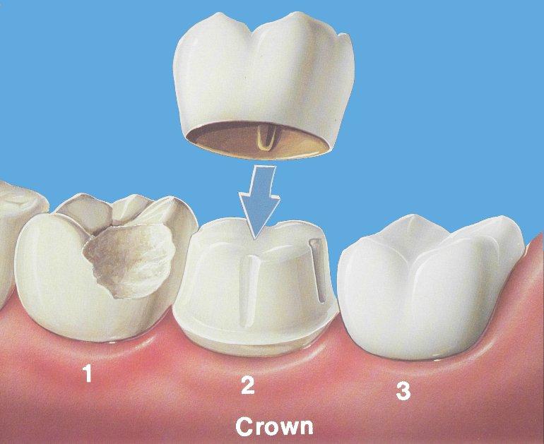Image result for dental crown